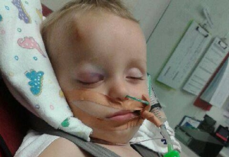 A simple fall left this toddler fighting for his life