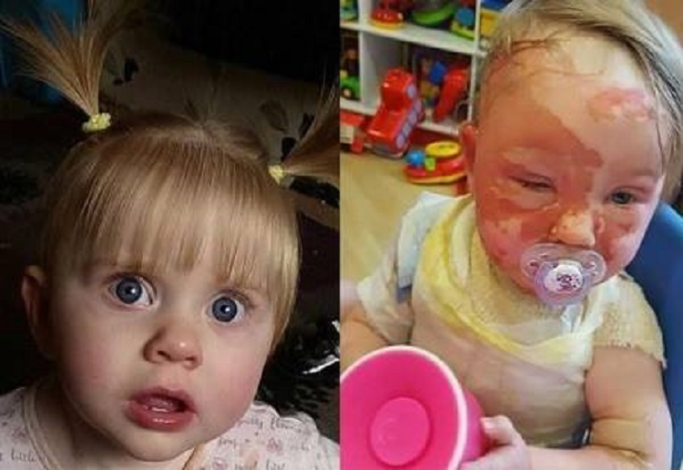In a split second this toddler was left disfigured for life