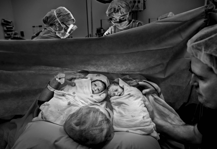 Photographer hits back at negative message around c-section delivery.