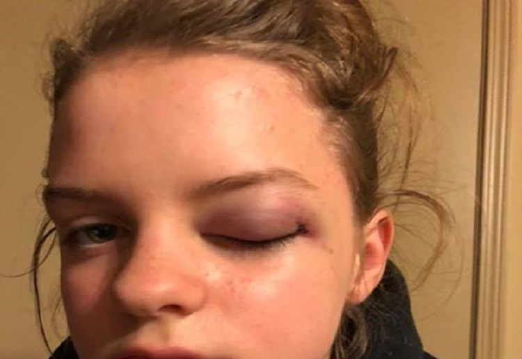 Mum's Warning After Daughter's Terrifying Experience