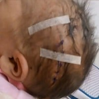 Mum Considers Suing Hospital After Baby Injured During Child Birth
