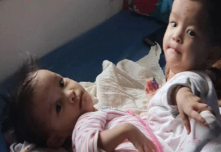 Today Doctor's Will Finally Attempt to Separate Conjoined Twins