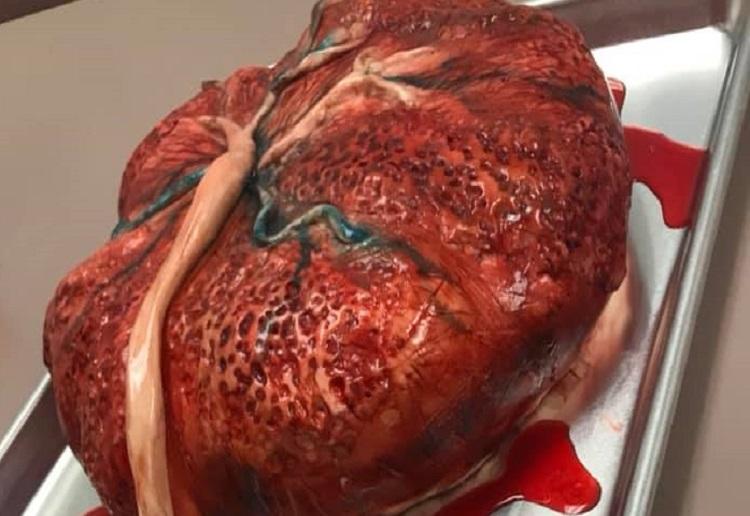 placenta cake