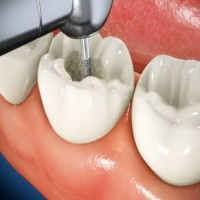 What Is A Root Canal And Why Might You Need One?