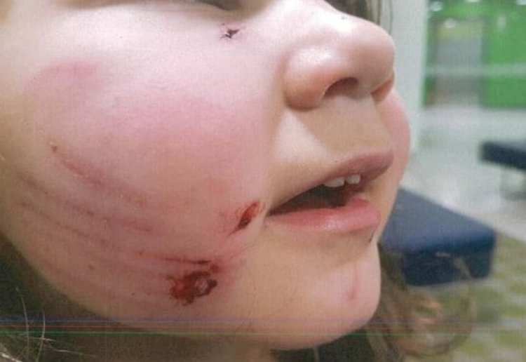 Toddler Attacked By Dog At Childcare Centre